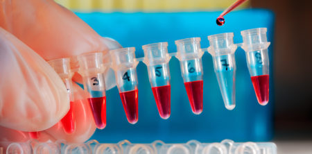 Odběr krve – pravidla, která je třeba dodržovat
