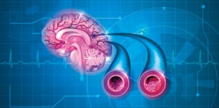Je možné zjistit, zda nám hrozí skryté riziko infarktu či mozkové mrtvice?