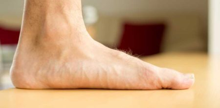 Ploché nohy dokážou hodně potrápit