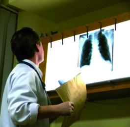 Nemoc, která hrozí všem kuřákům